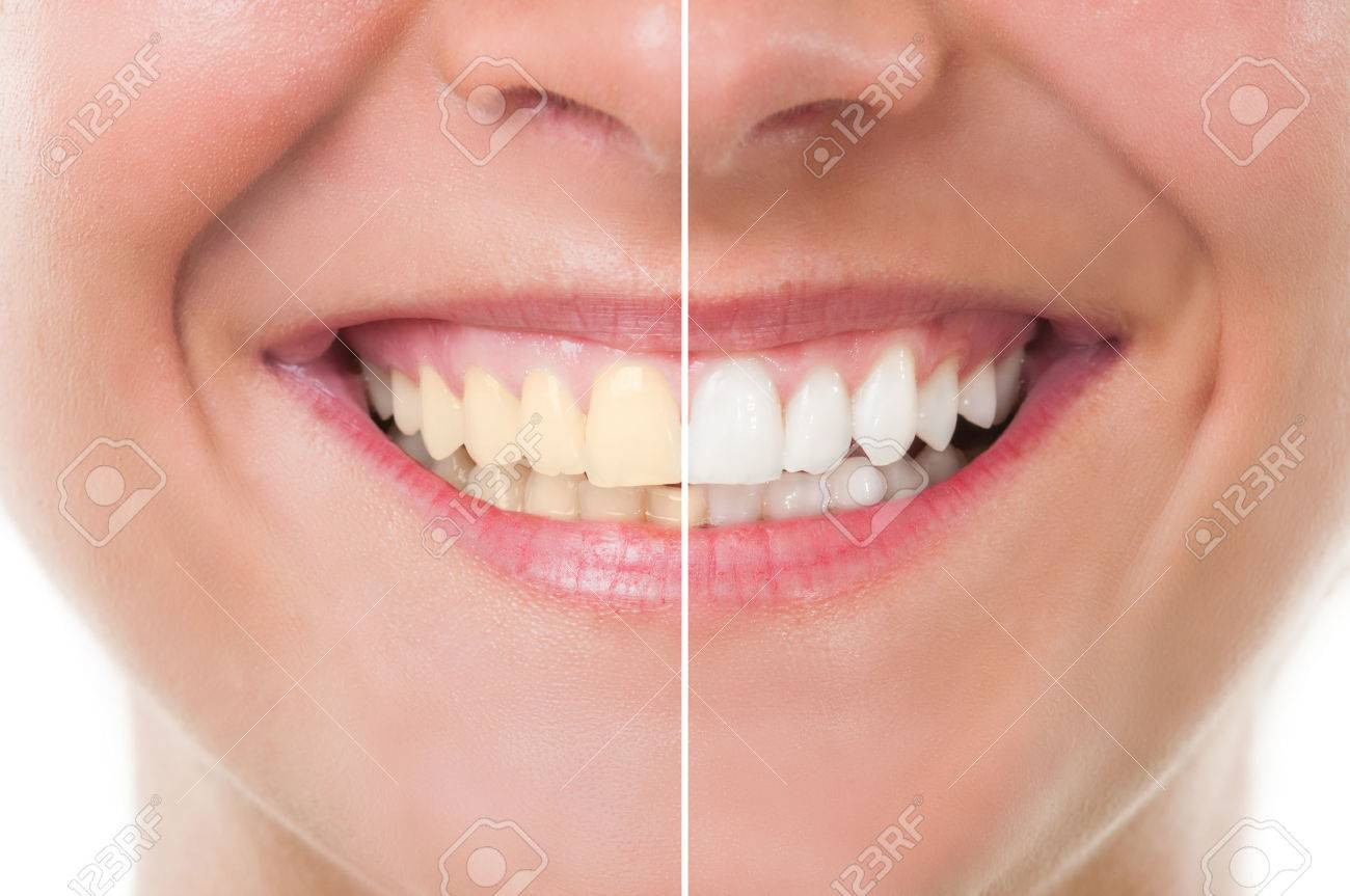 Perfect woman smile before and after whitening. Dental care and periodic exam concept - 37833246