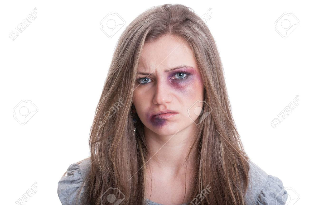 Injured woman with bruised eye and lip. Domestic violence against women concept on white background - 38697633