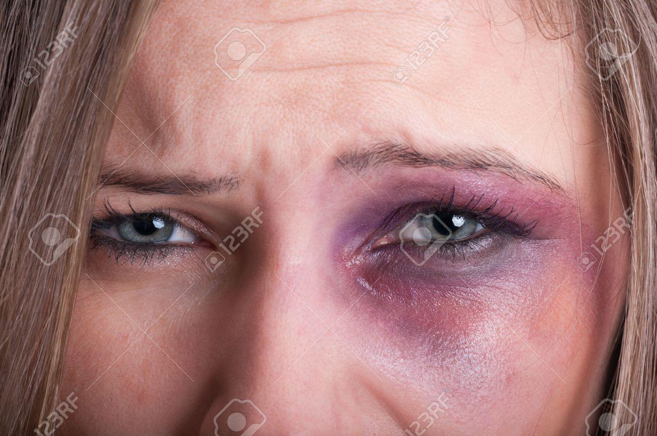 Closeup of sad eyes of a woman domestic violence victim - 38897741