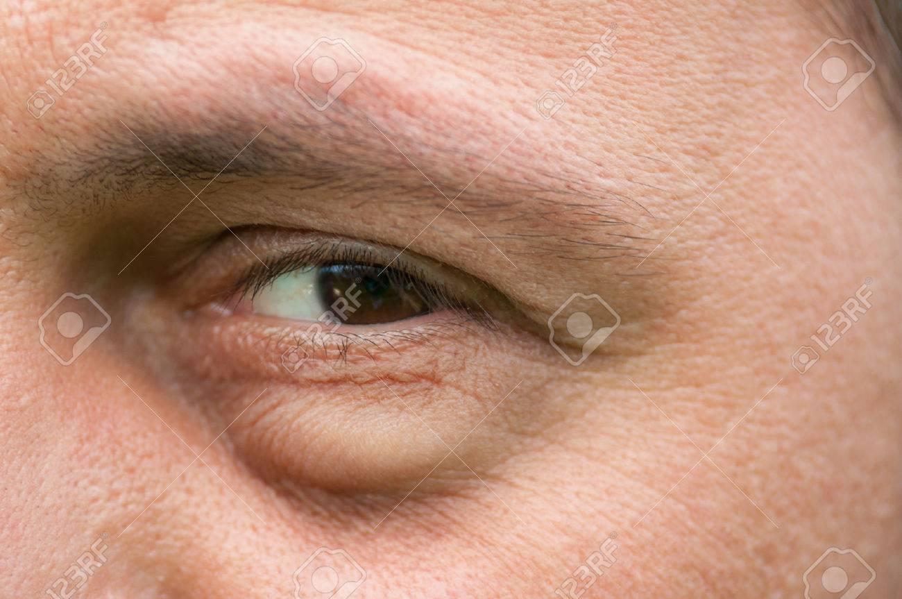 Eyesore, inflammation or bag swelling under eye. Medical problem like conjunctivitis - 41724581