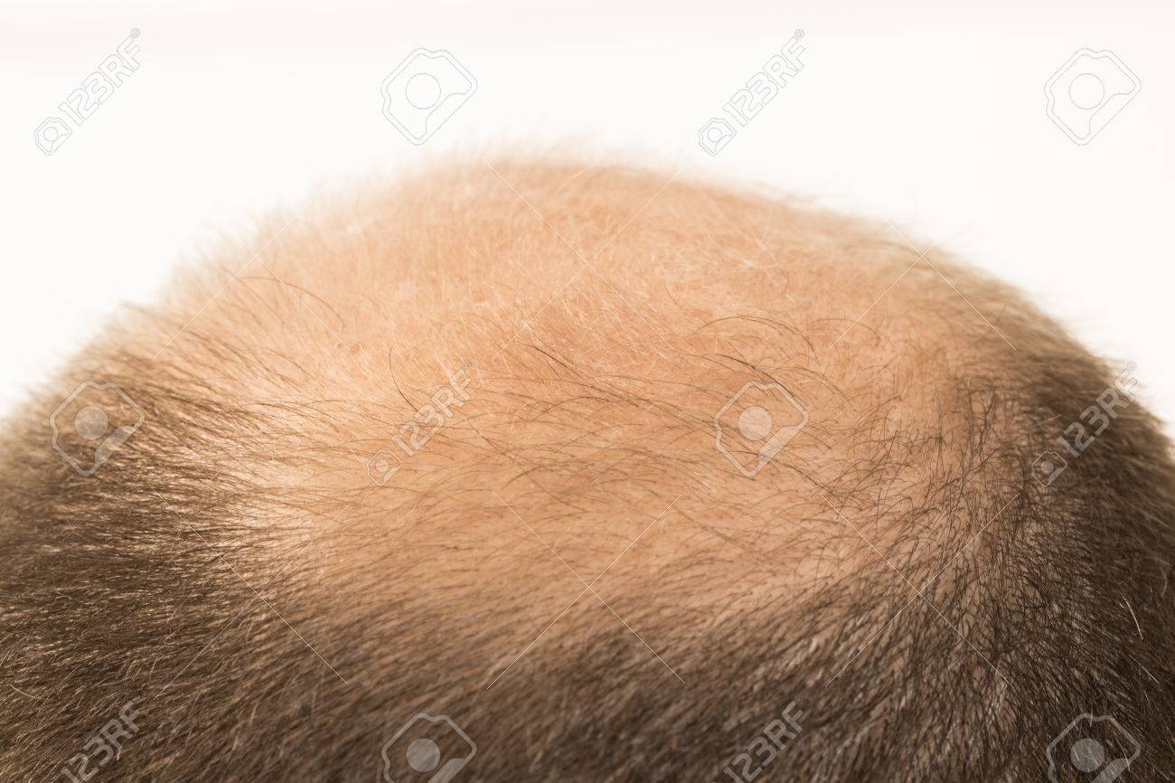 40s man with an incipient baldness , close-up, white background - 50266260