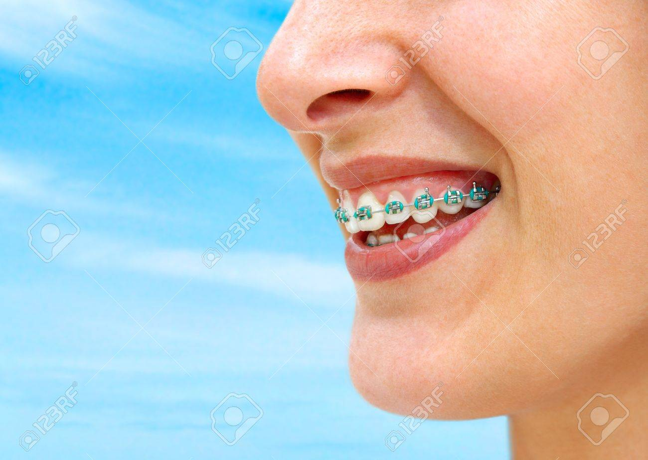 Detail Of Young Womans Smile Showing White Teeth With Braces. Stock ...