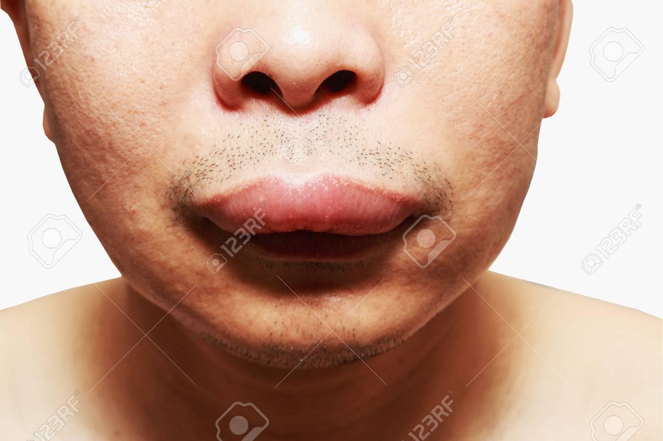 tiña alrededor de las imágenes de la boca