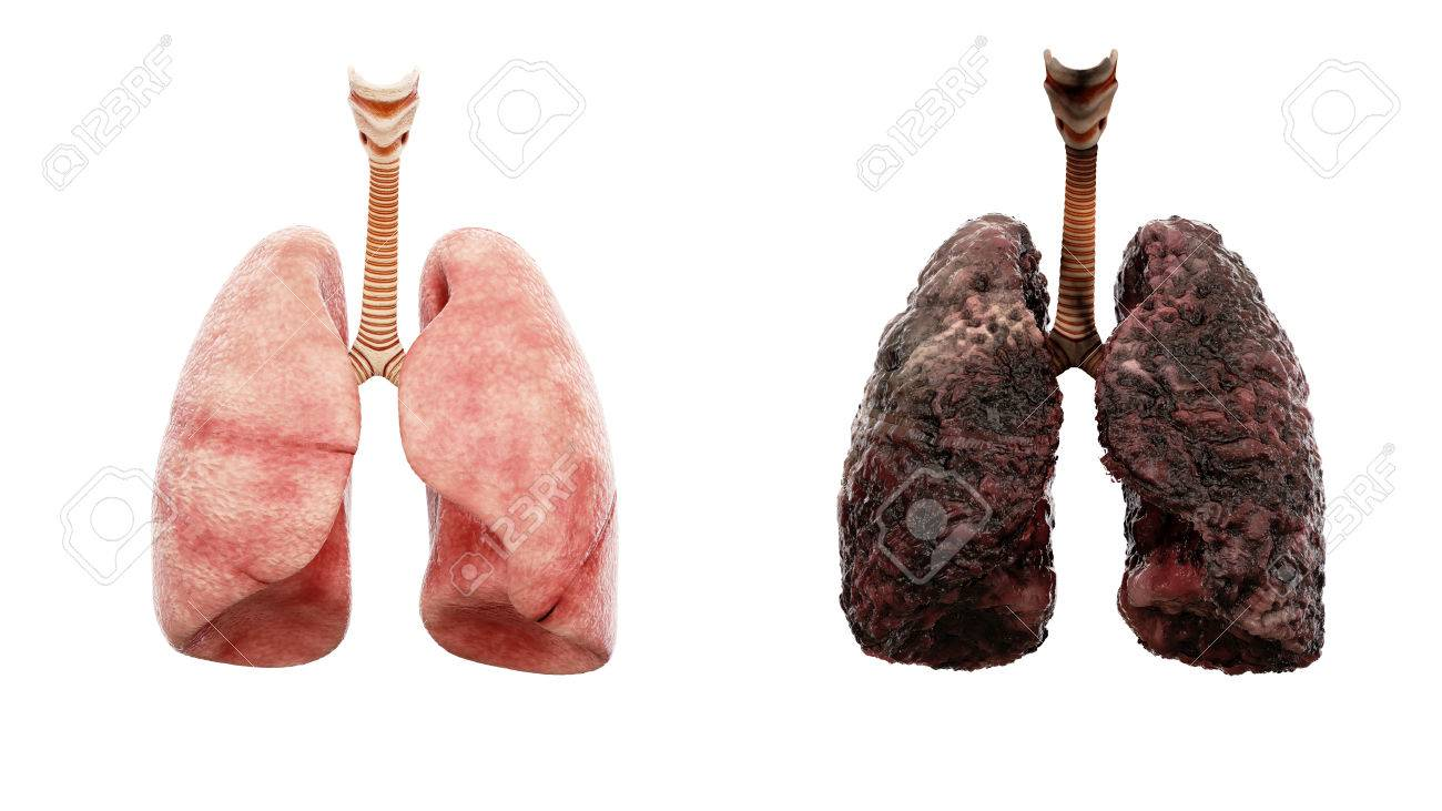 healthy lungs and disease lungs on white isolate. Autopsy medical concept. Cancer and smoking problem. - 71245050