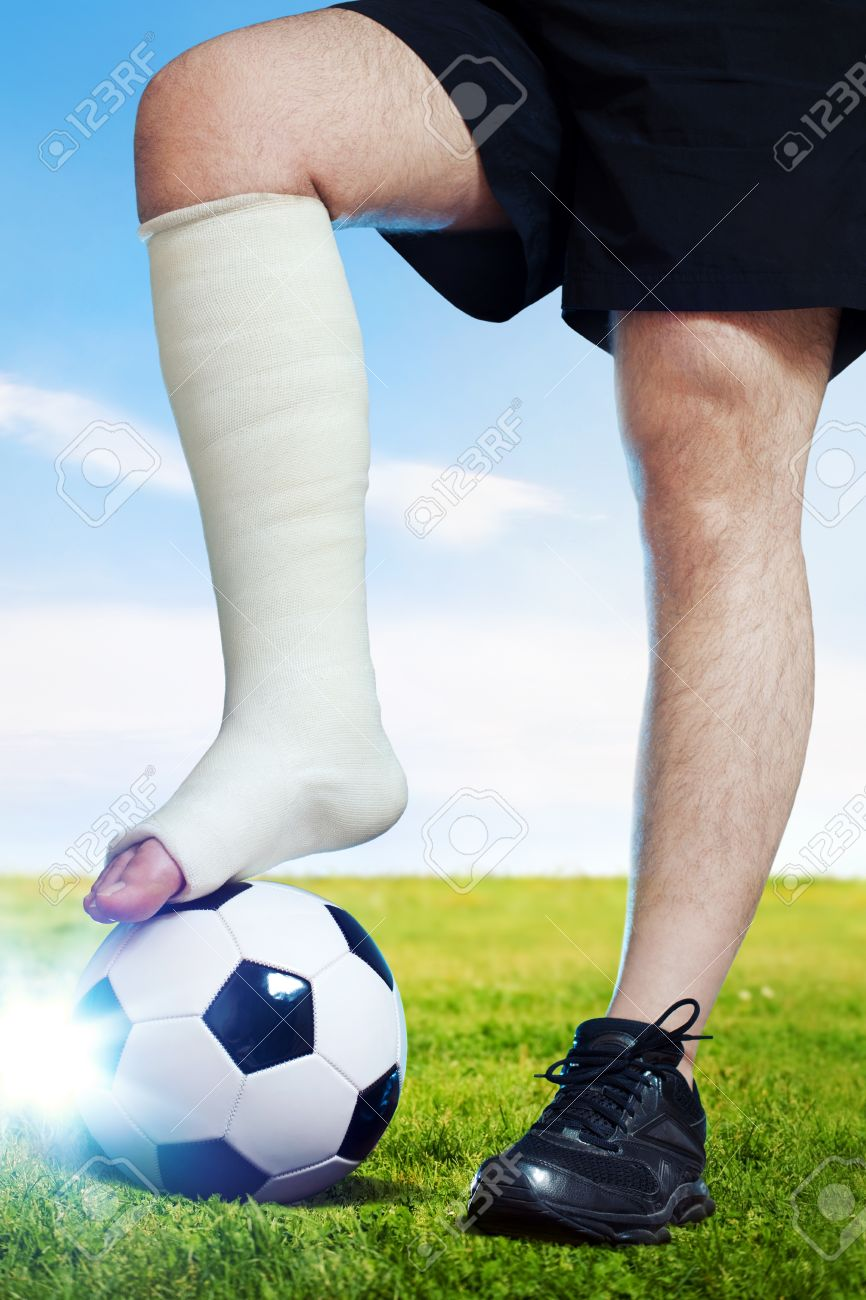 Image result for soccer player with broken leg