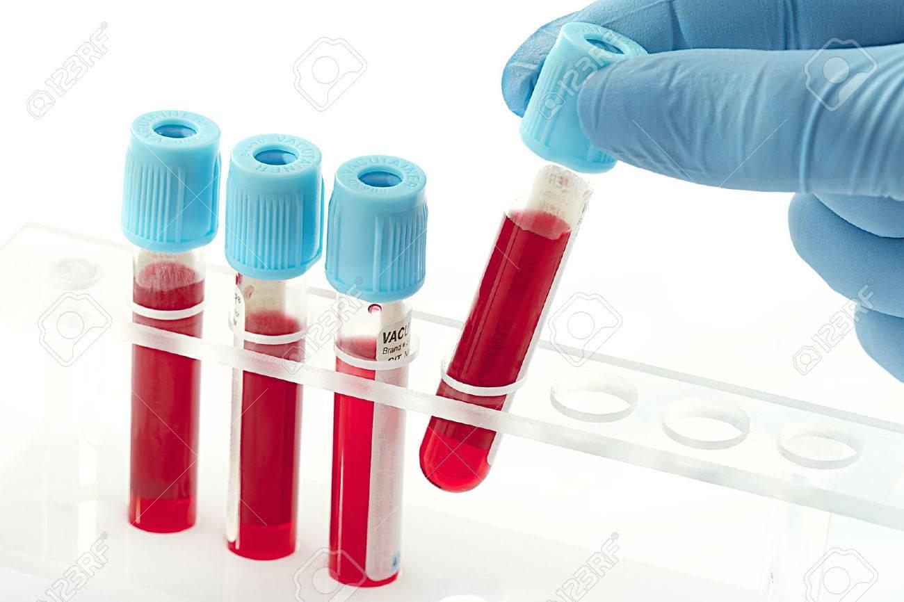 Resultado de imagen de analisis de muestras de sangre