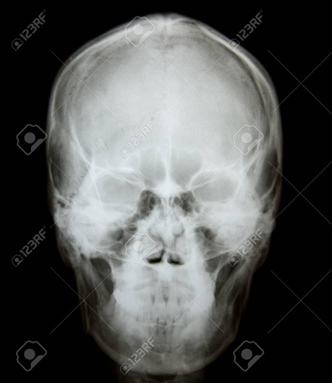 X Ray Of Nasal Bone Fracture After Accident Stock Photo, Picture And ...