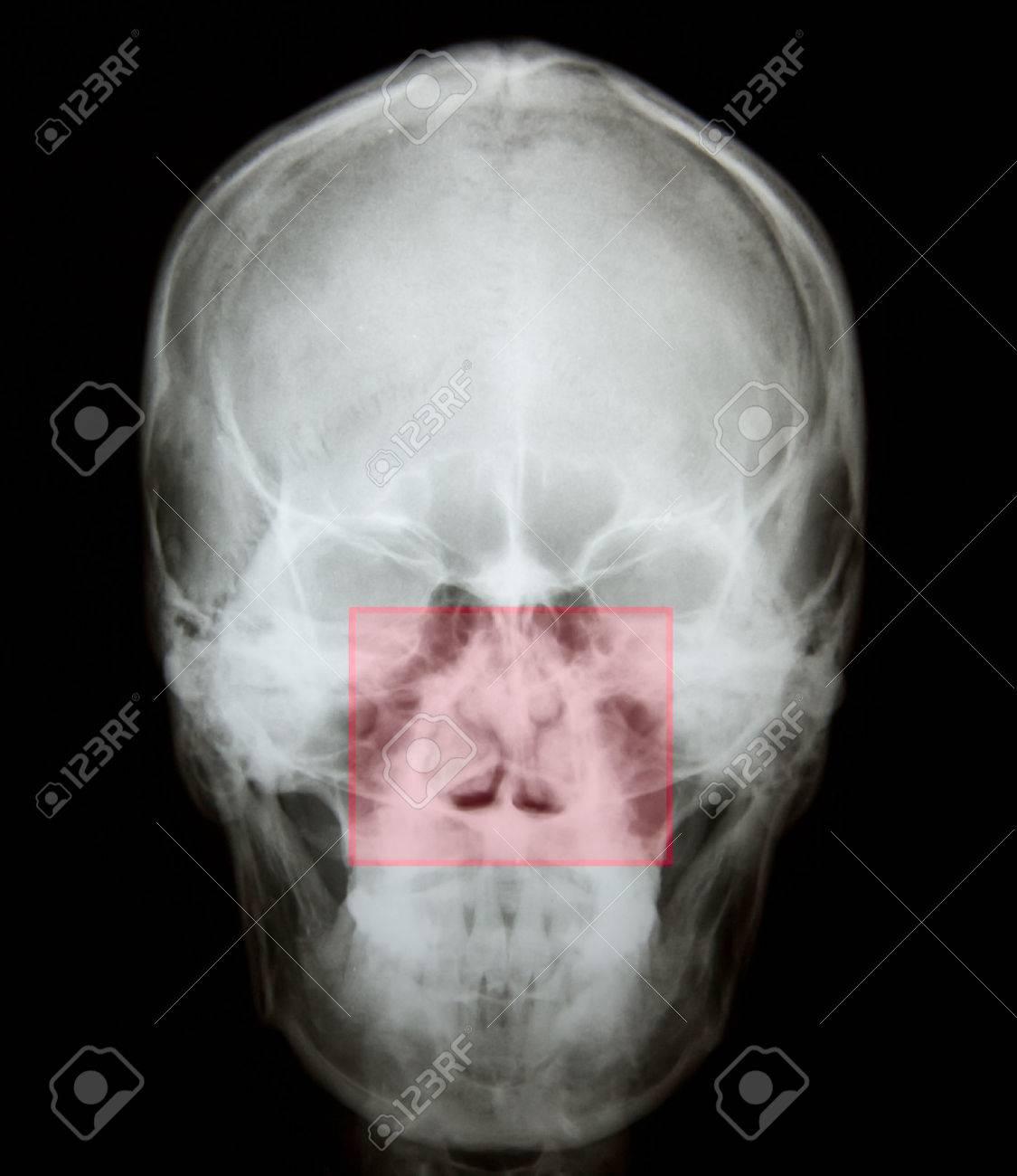 Radiografía De La Fractura De Hueso Nasal Después Del Accidente ...