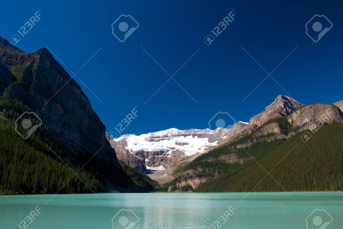 Quiet scenery of Lake Louise under a clear blue sky - 15320755