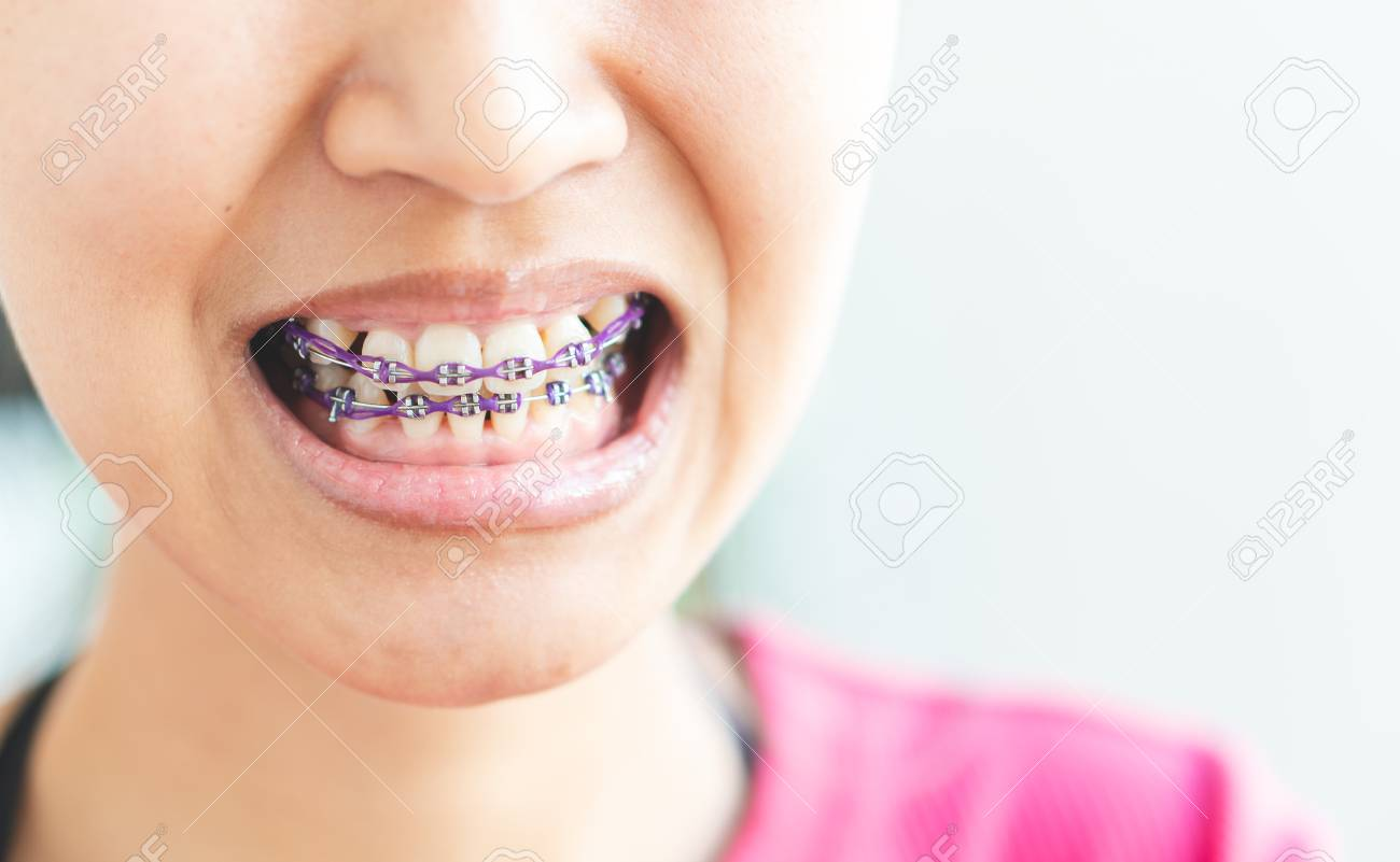 Women braces and is dirty, not beautiful. - 126260765