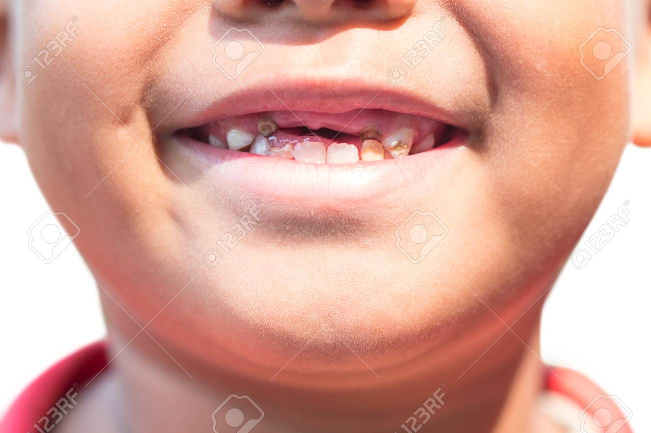 The boy with decayed baby teeth. - 126260767