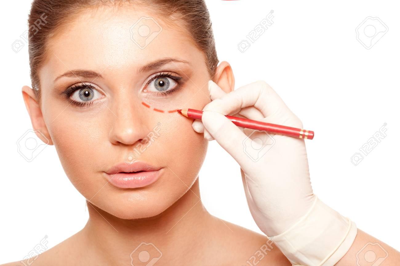 closeup woman face with surgery mark under eye Stock Photo - 18387414