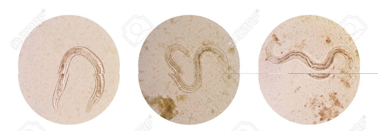 Colección De Vista Microscópica De Strongyloides Stercoralis Macho ...