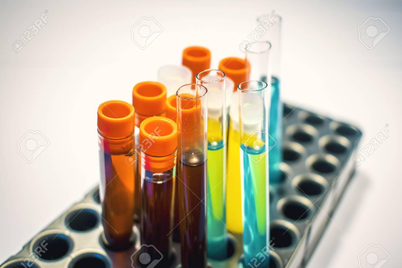 Blood And Urine Tests Developed To >> Colorful Laboratory Test Tubes Biochemistry Blood Tests Urine