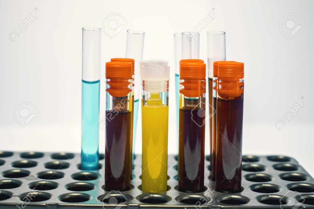 Tubos De Ensayo De Laboratorio Coloridos Análisis De Sangre De Bioquímica Análisis De Orina Tubo De Ensayo Análisis Médico Concepto De Investigación Investigación De Fertilidad Fluidos De Células Madre Fotos Retratos Imágenes