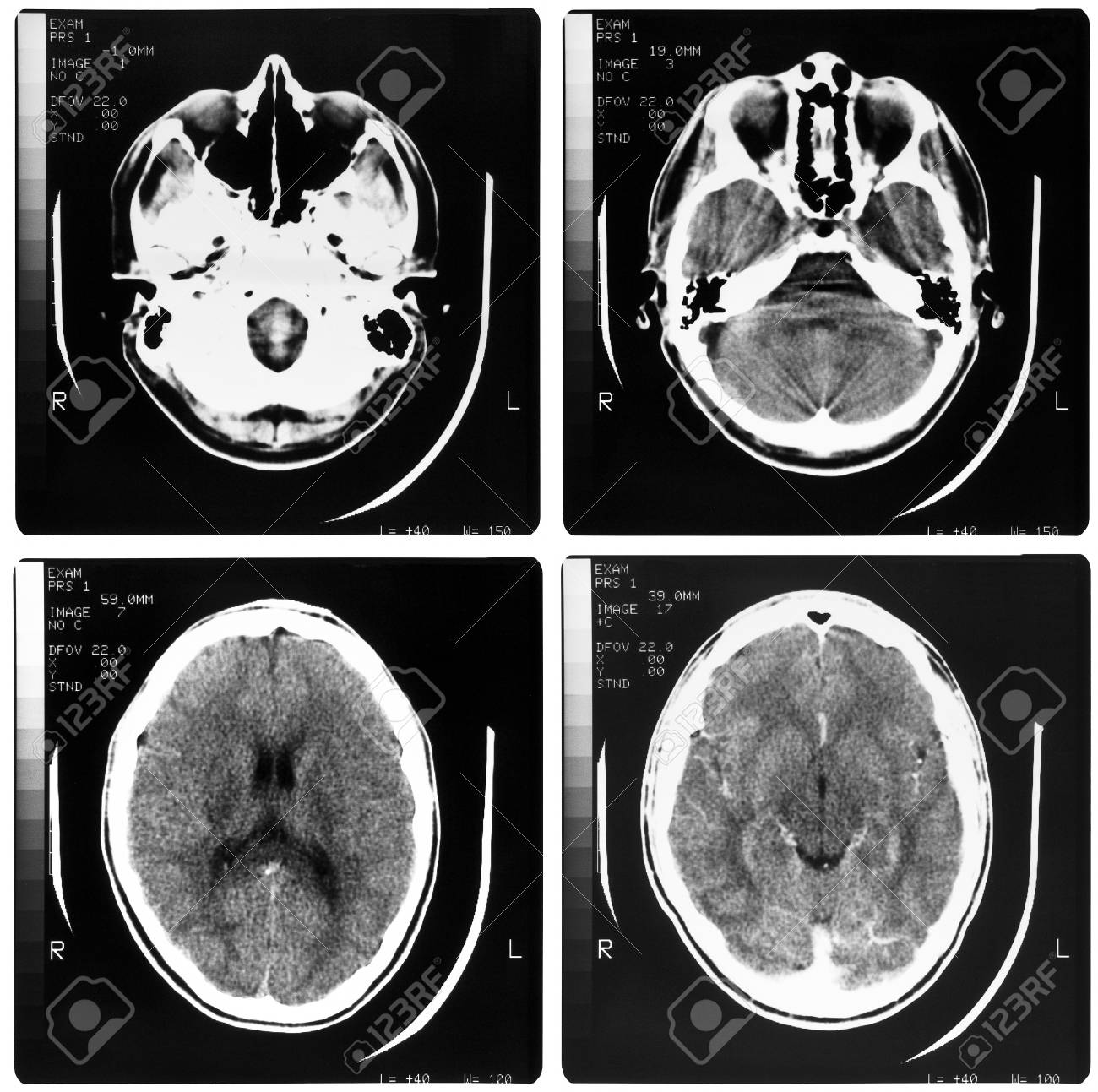 Medical X ray imaging of human brain skull bones Stock Photo - 10498515