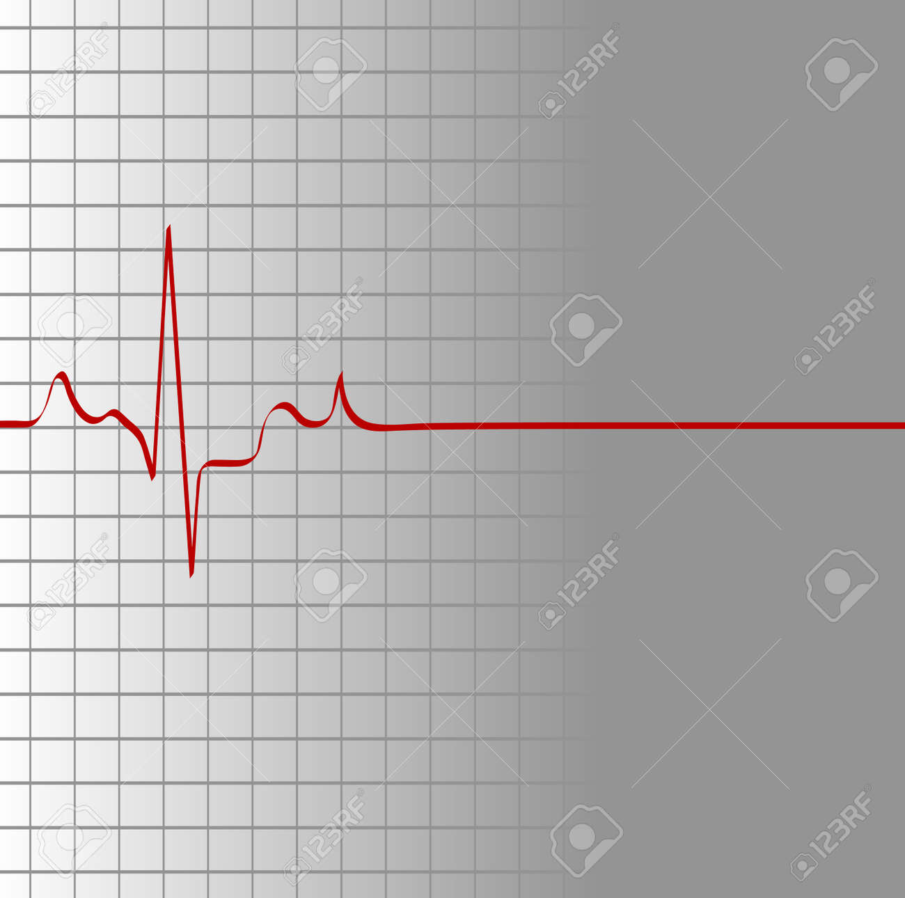 grid with heart beat and then flatline - death - vector Stock Vector - 2752118