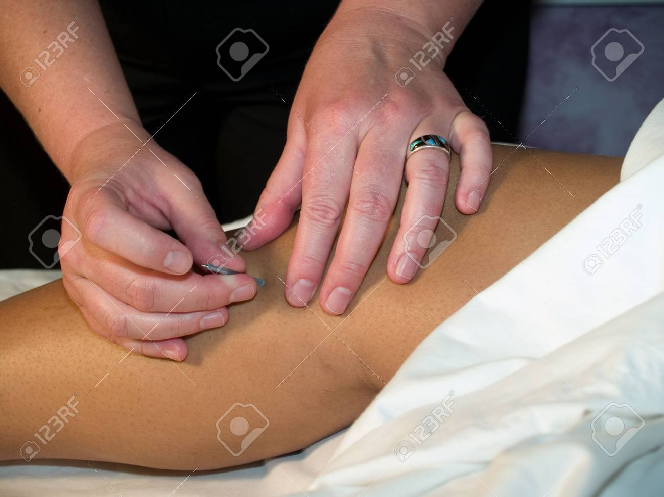 The Eastern or Asian acupuncture medical treatment said to prevent or treat a variety of medical ailments, including pain. Stock Photo - 3741097