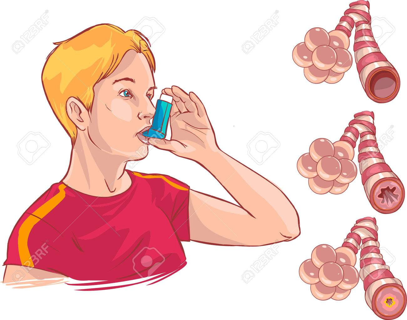 Vector Illustration Of A Medical Anatomy Of Asthma Royalty Free ...