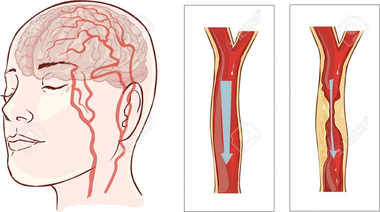 Ilustración Vectorial Ofbrain Accidente Cerebrovascular. El Infarto ...
