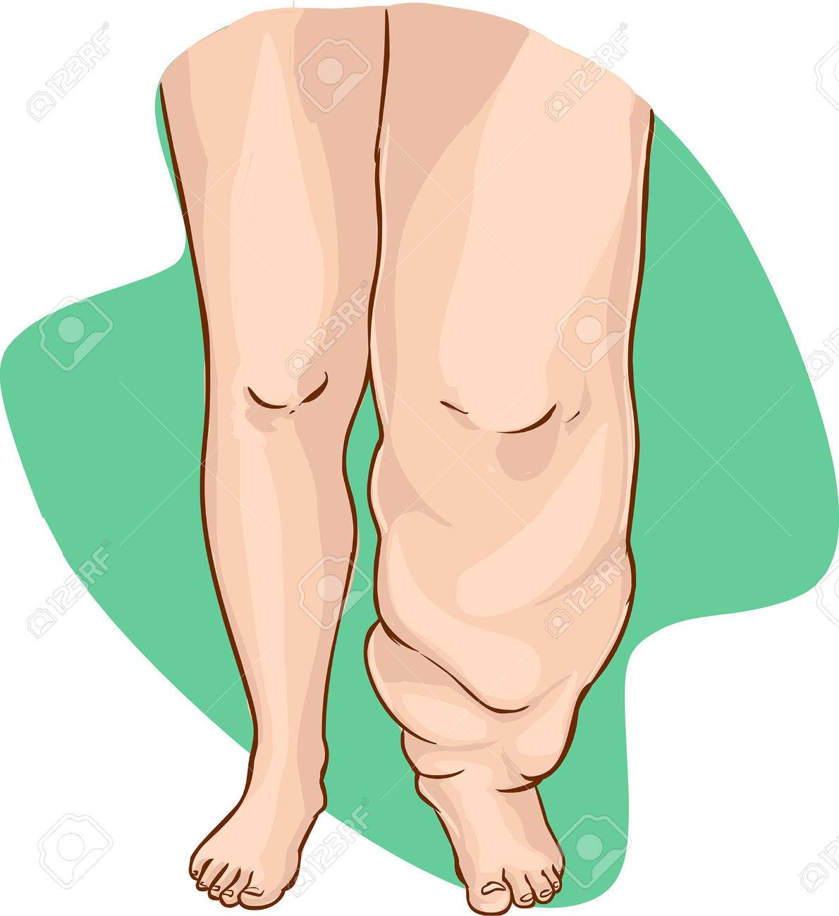 vector illustration of a Lymphedema of the disease - 52749208