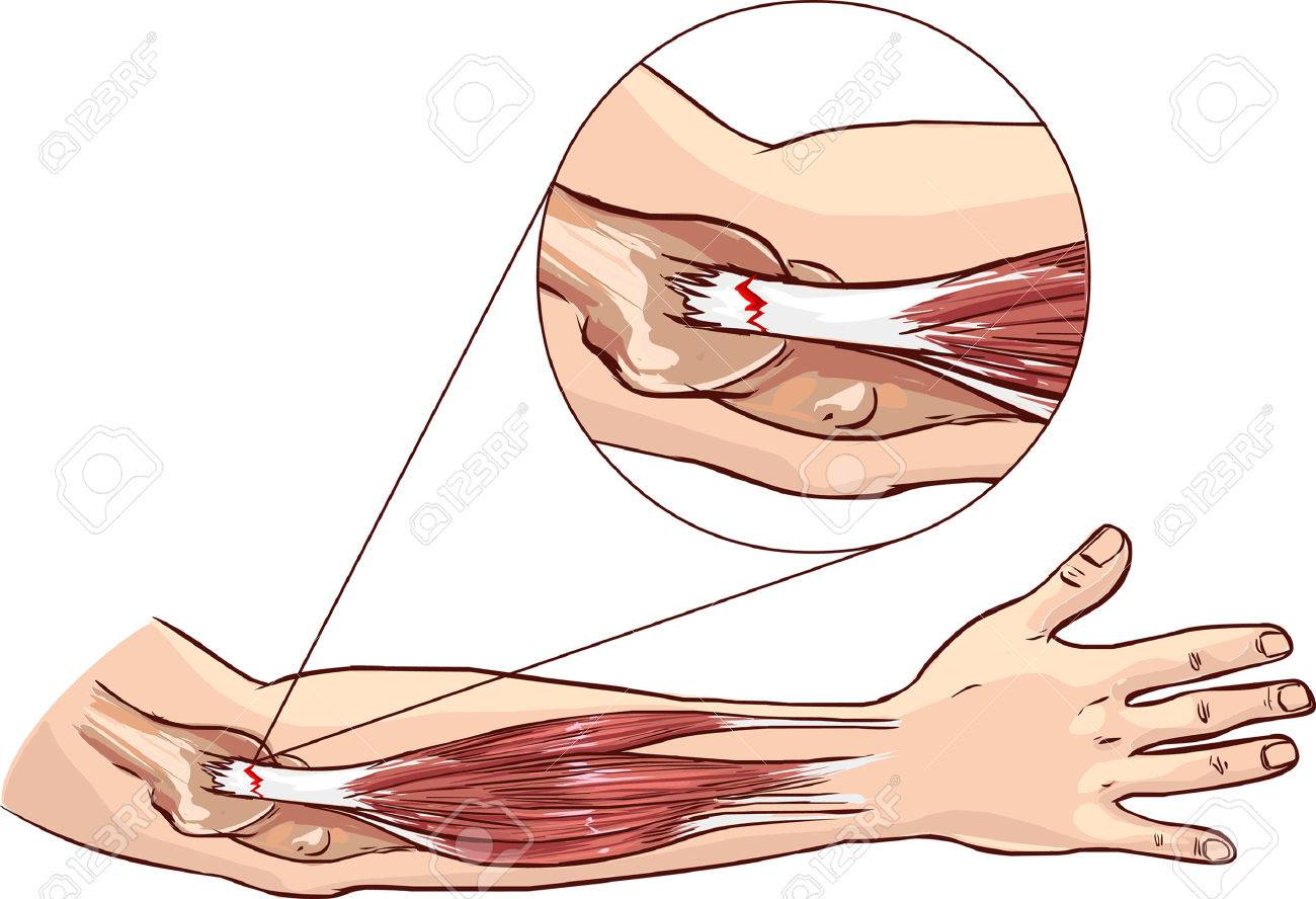 Tennis Elbow - Tear In The Common Extensor Tendon Of The Arm Royalty ...