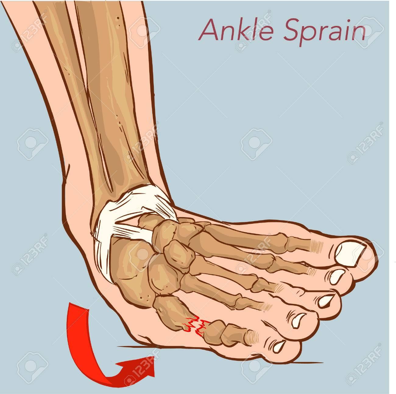 「足関節捻挫 フリー」の画像検索結果