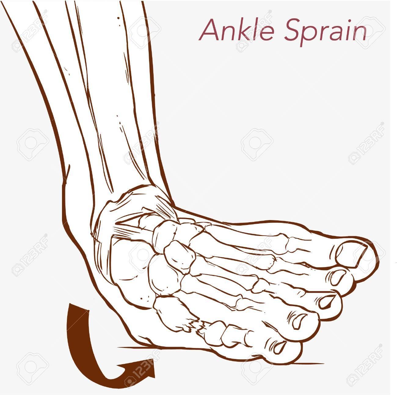「足関節捻挫 イラスト」の画像検索結果
