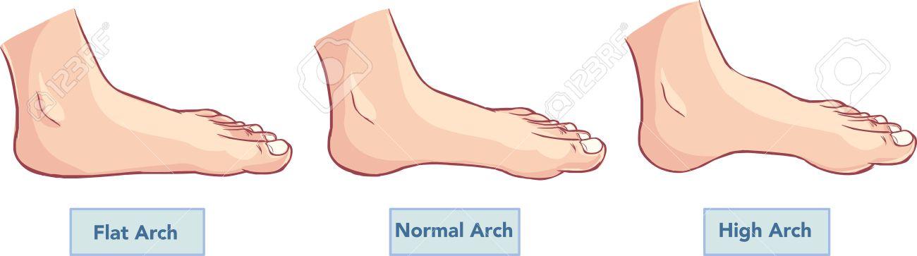 Vektor-Illustration Eines Flachen Und Normale Füße Lizenzfrei ...