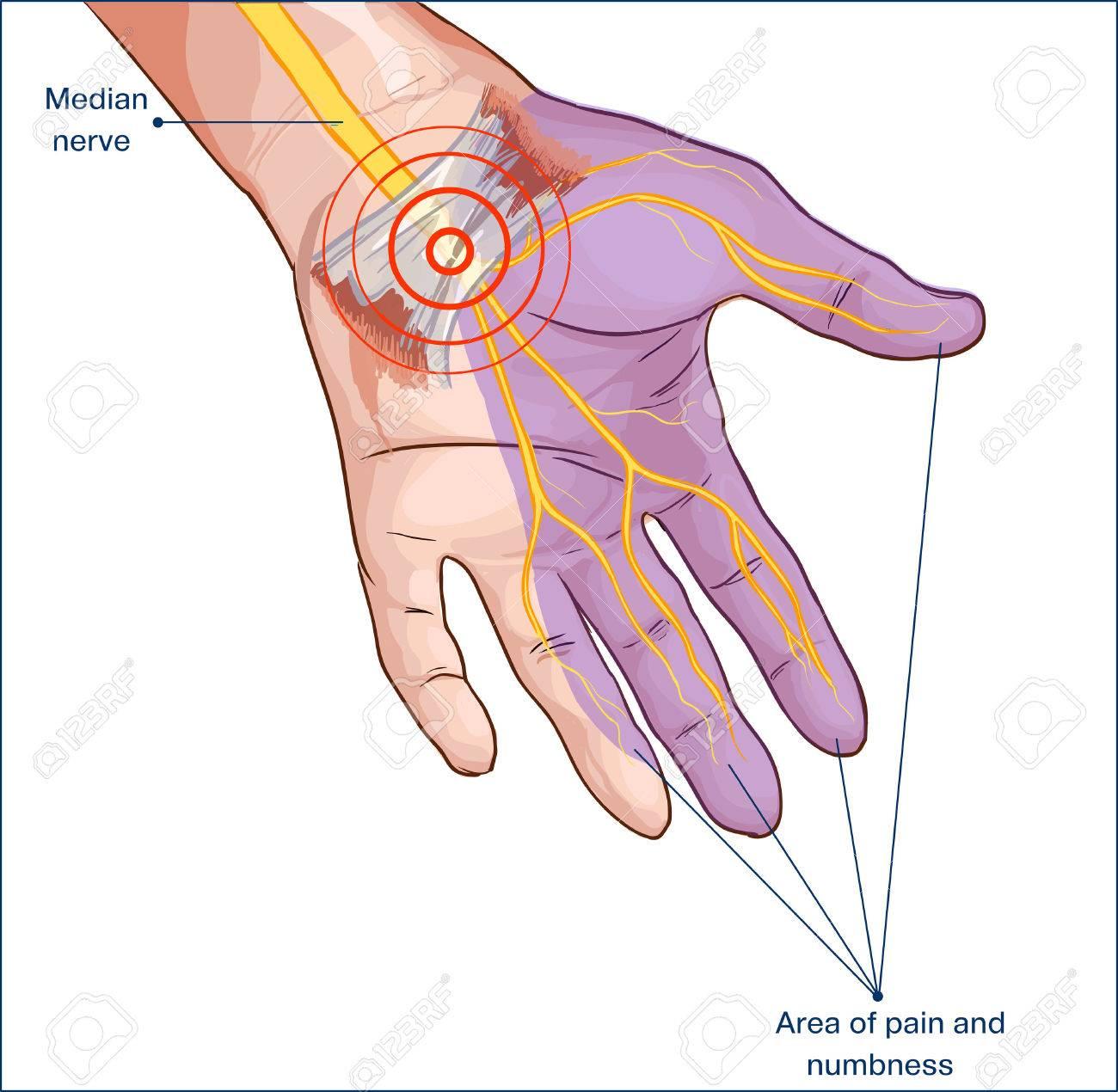 transverse carpal ligament compressed median nerve hand - 73199850