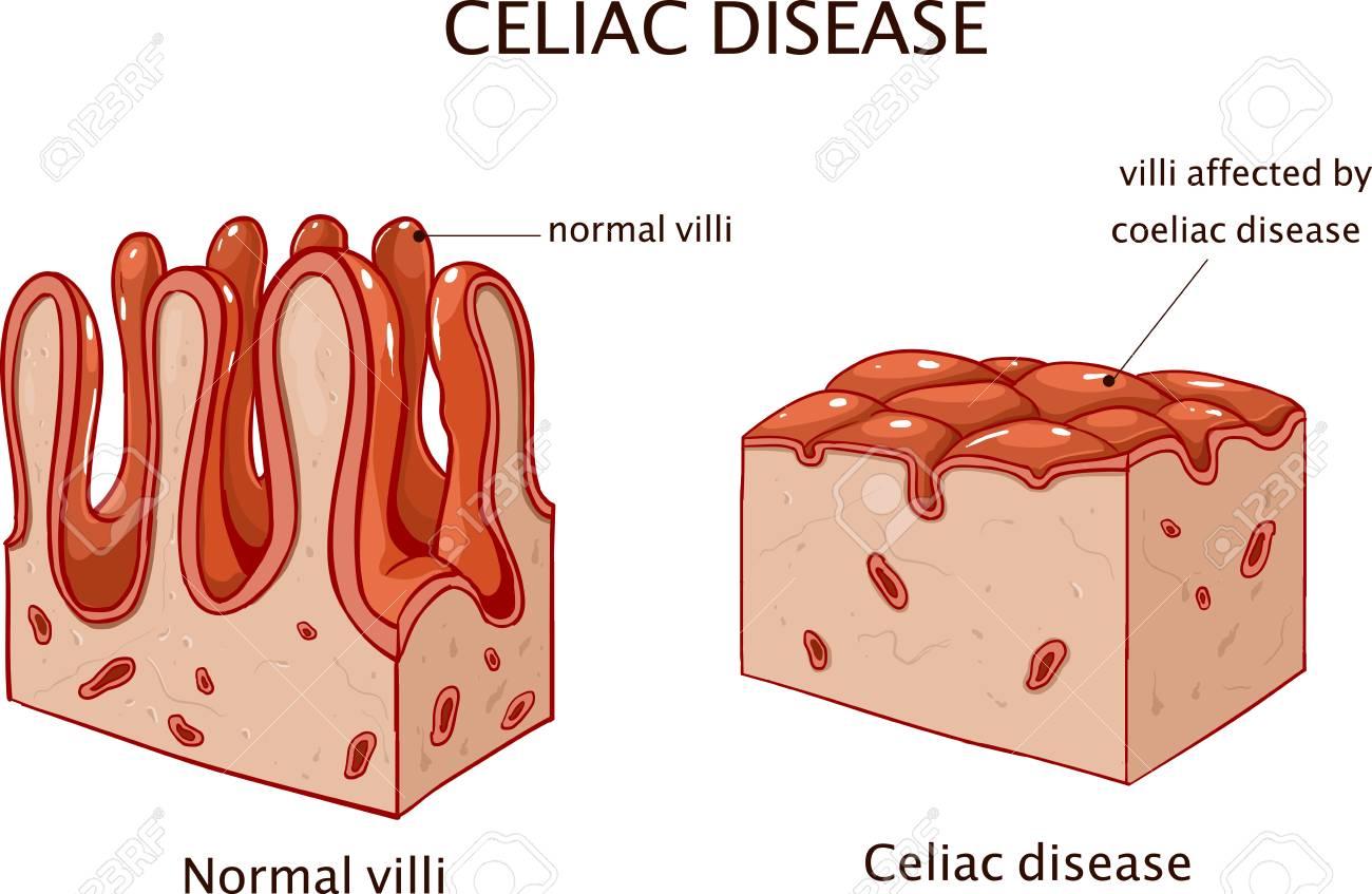 Coeliac Disease Or Celiac Disease Inforgraphic Vector Illustration
