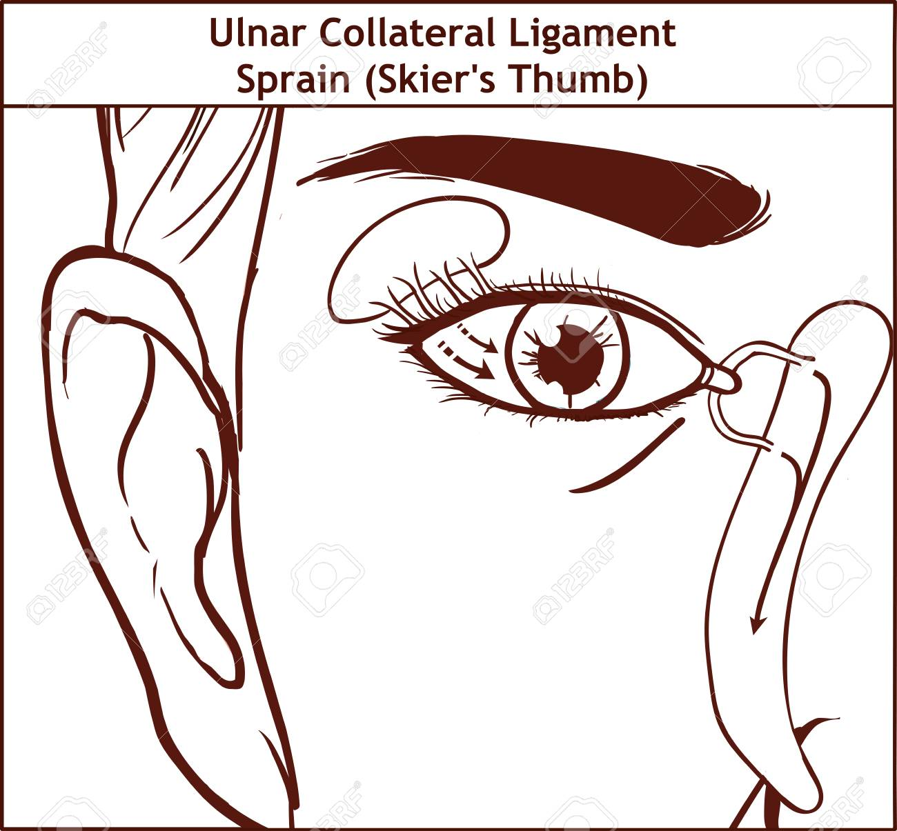 Vector Illutration, Anatomy Of The Lacrimal Apparatus Royalty Free ...