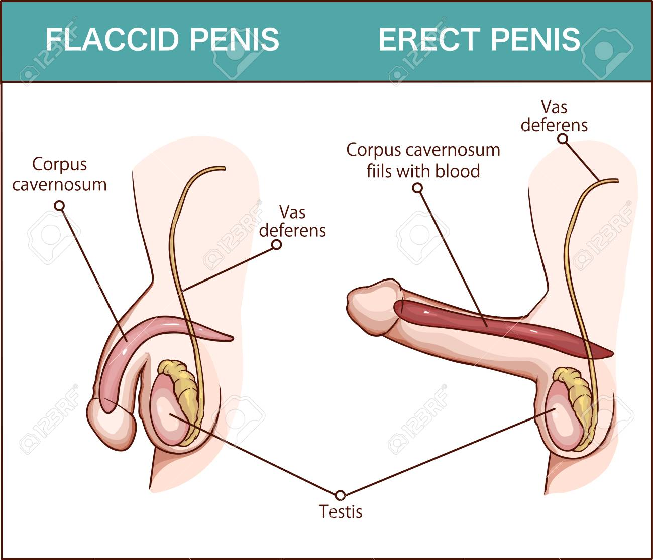 Erection of male sex organ penis, medical illustration with man..