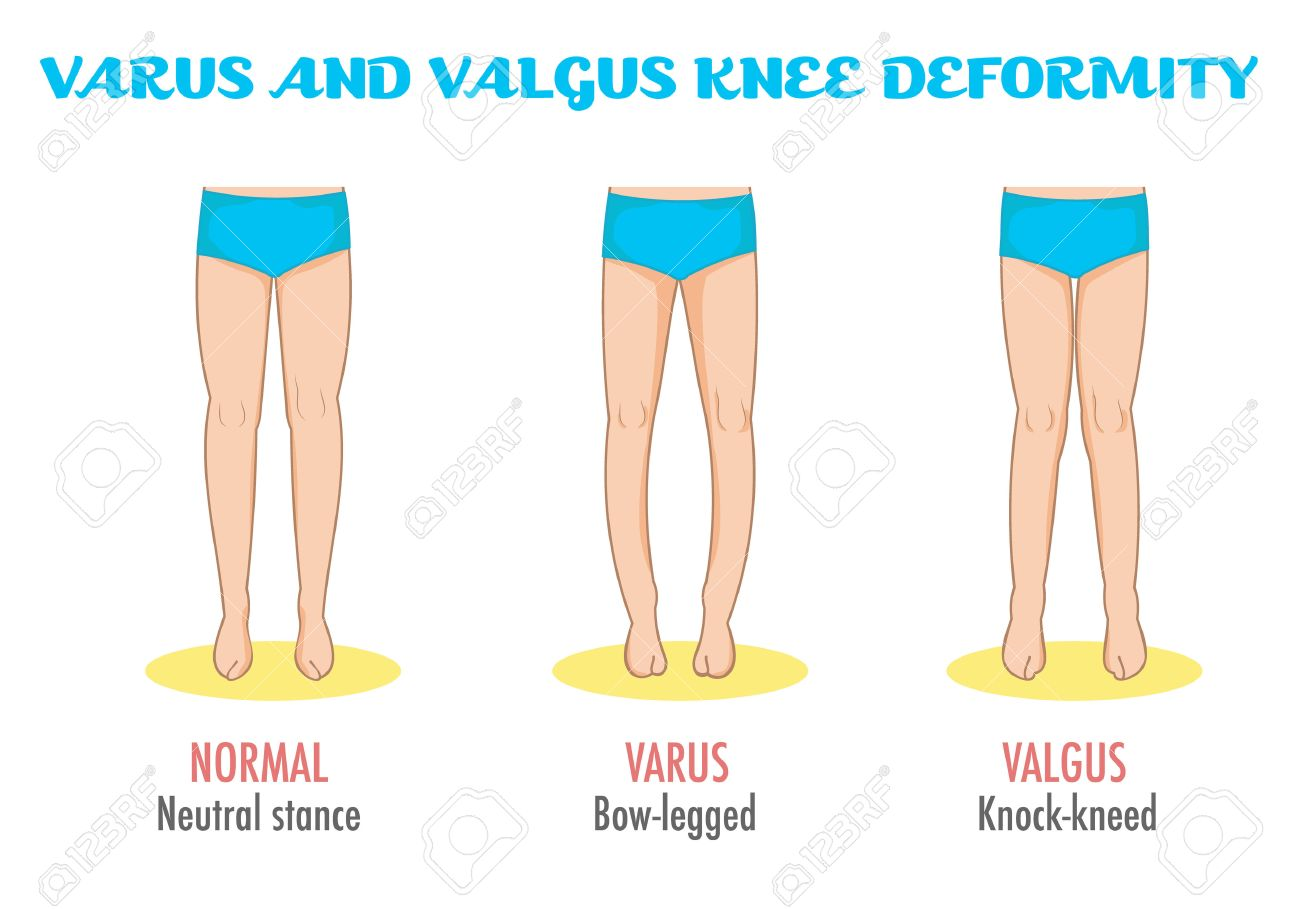 valgusvarus knee legs diseasedeformation infographic shows normal leg stance