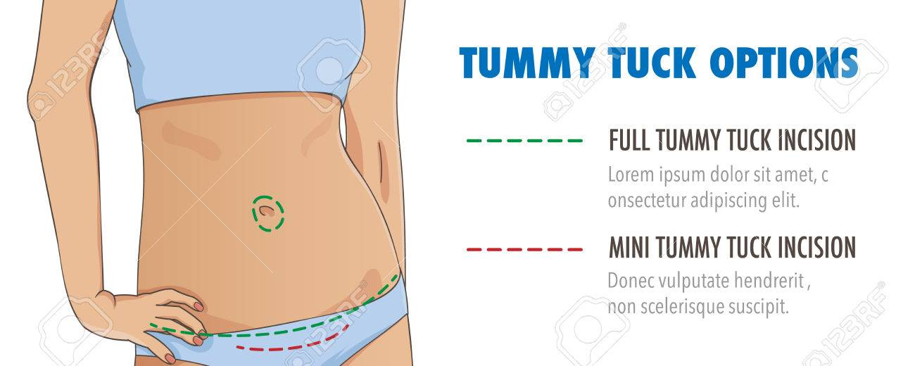 Tummy tuck, abdominoplasty infographic banner for web, posters and brochures. Abdominal or liposuction plastic surgery. Closeup of slim female stomach. Vector illustration. - 71157533