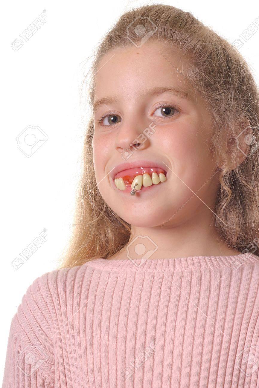 Gesicht hübsches hässliche zähne Hässliche Zähne
