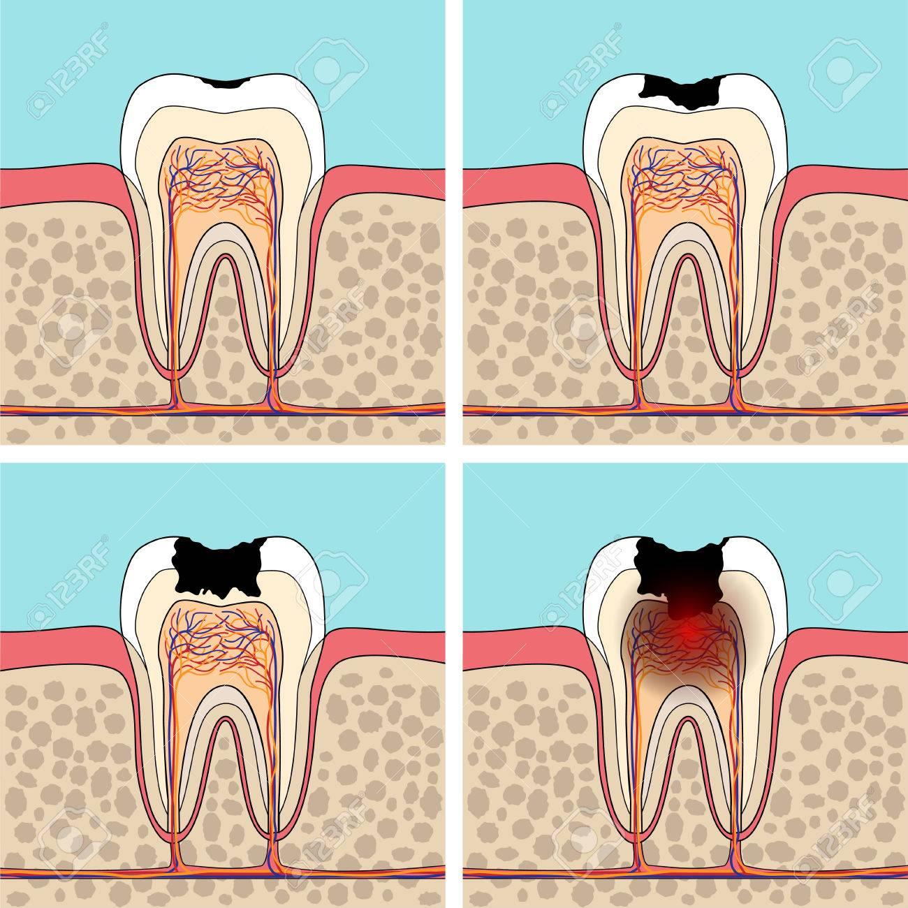 Etapas Caries Dental. Cruz Anatomía Sección De Diente Y Daños ...
