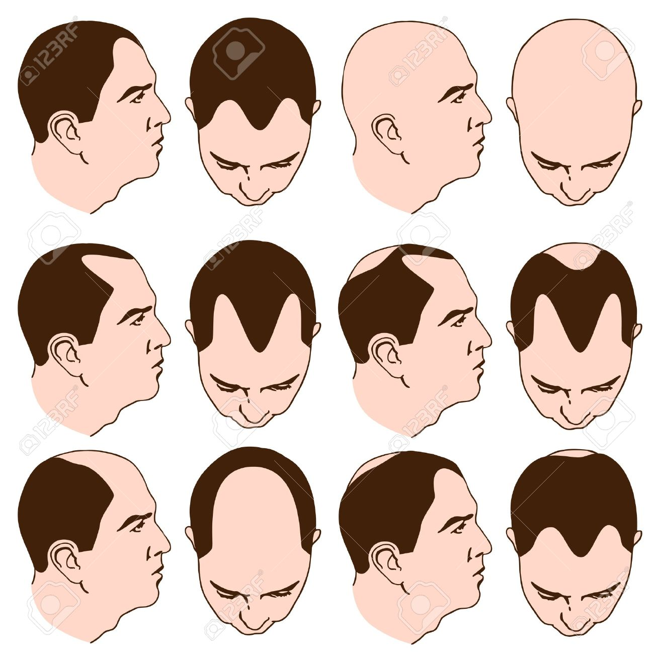 An image of man with various receding hairlines. Stock Vector - 9163134