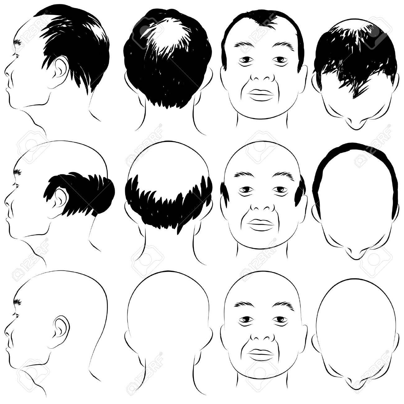 What Is Male Pattern Baldness Magnificent Design