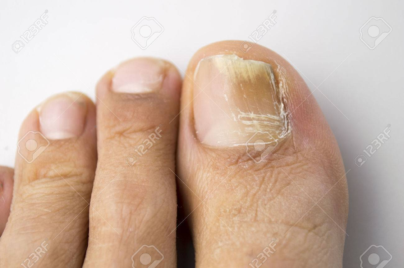 Onychomycosis With Fungal Nail Infection Stock Photo, Picture And ...