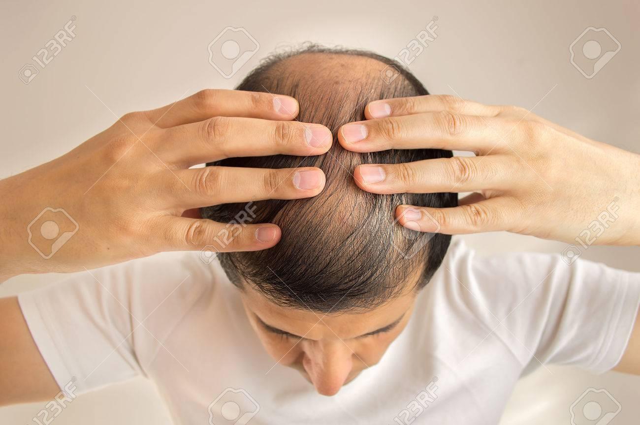 close up of man controls hair loss - 58982660