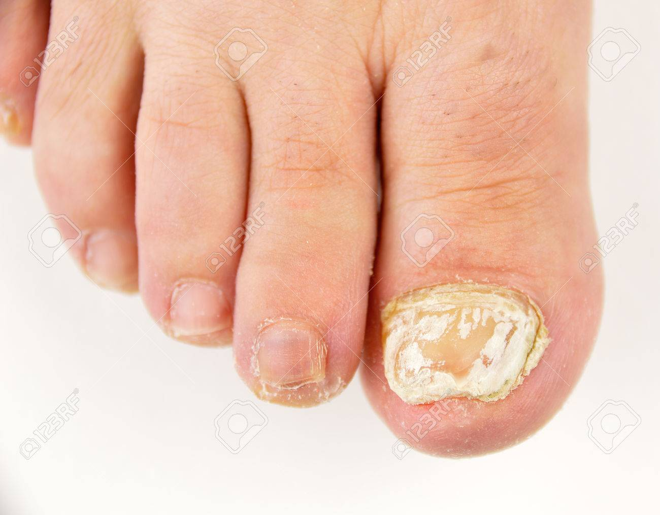 Close Up Image Of Left Foot Toe Nail Suffering From Fungus Infection ...