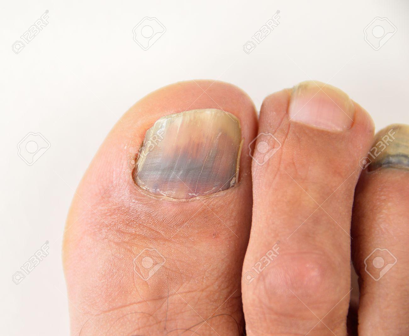 Close Up Of Subungual Hematoma Blue And Black Toe Nail Stock Photo ...