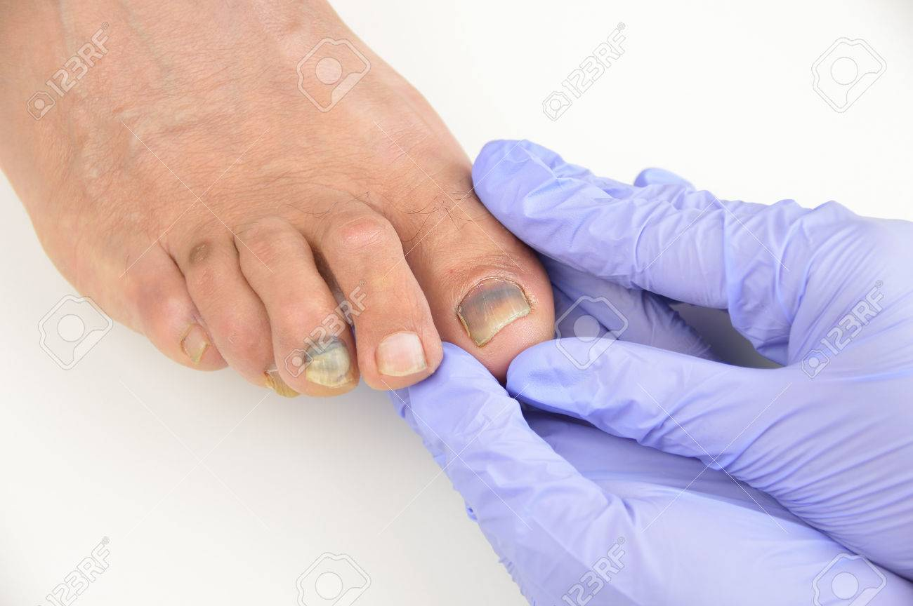 Closeup Image Of Podologist Checking The Left Foot Toe Nail ...