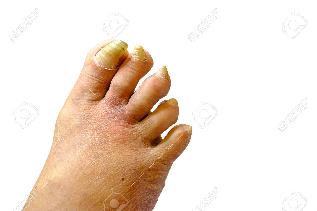 Sick unhealthy nails on the foot of a man isolated - 74705118