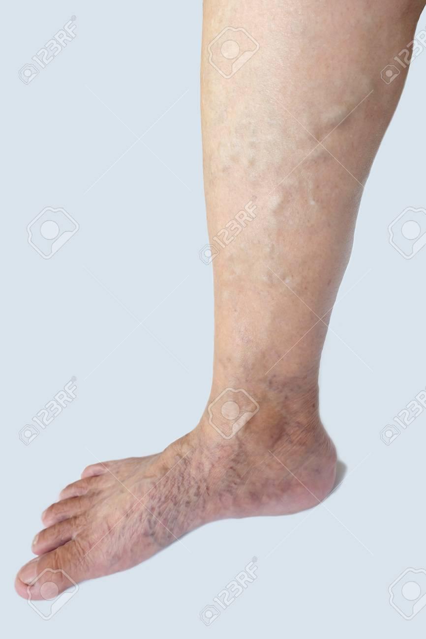 foto varicose foot