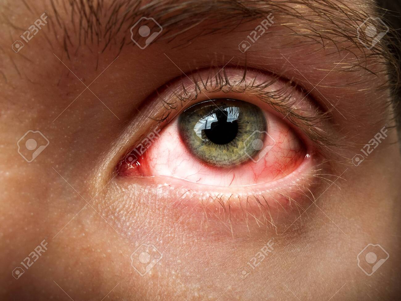 conjunctivitis, conjunctival inflammation, red eyes, infection and inflammation, close up eye - 146579158