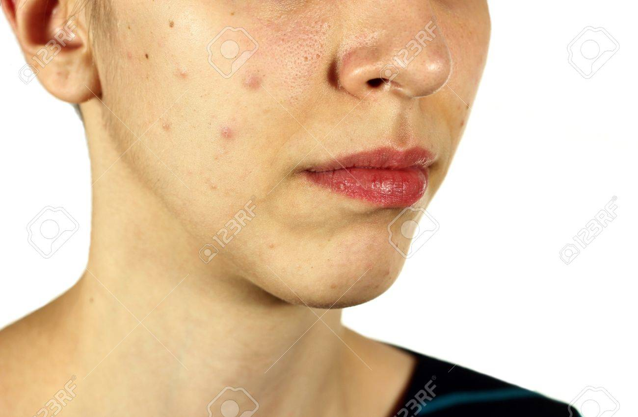 Girl with bad skin acne and black heads on white background - 19562889