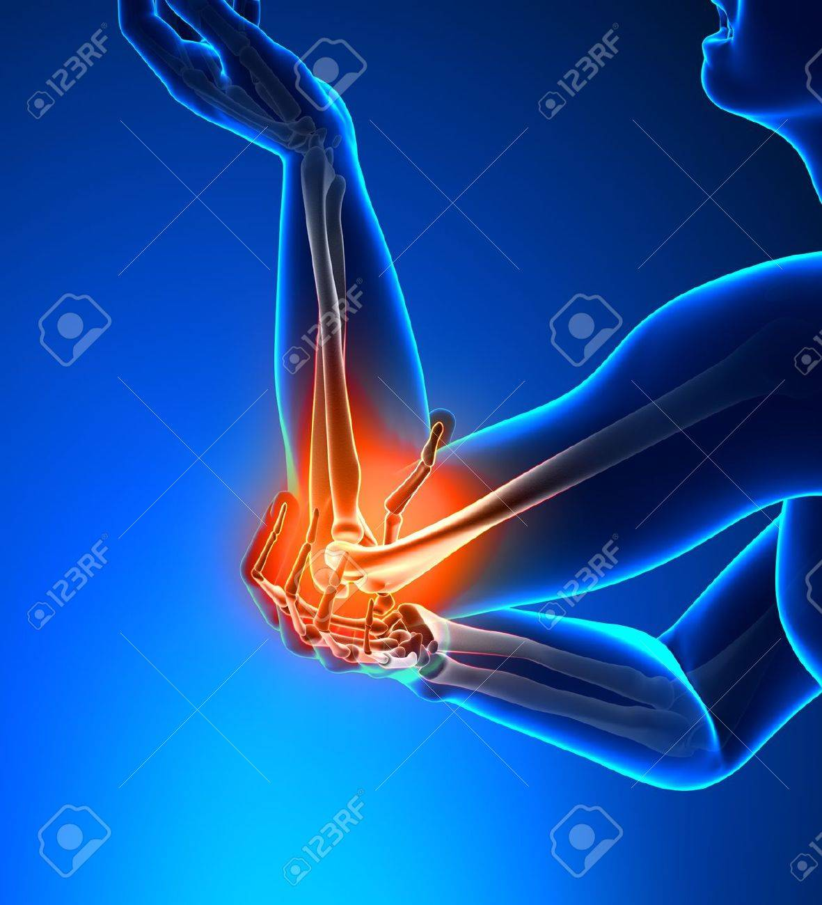 Elbow Pain Male - Side view Stock Photo - 19244751