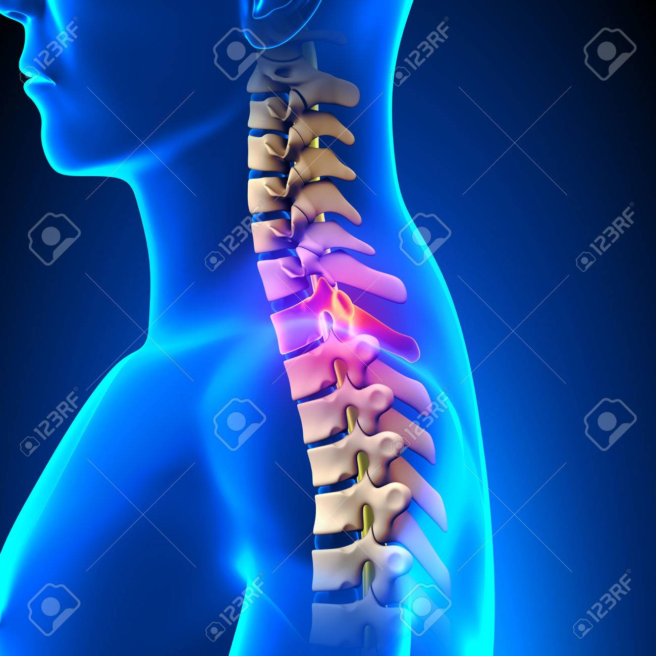 T1 Disc Thoracic Spine Anatomy Stock Photo Picture And Royalty